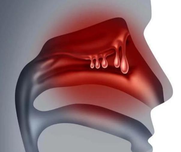 这5种自然疗法能帮你解决鼻息肉问题!